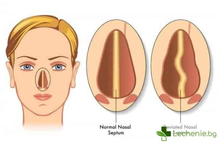 Хрема, която не минава или кога операцията на носната преграда е наложителна
