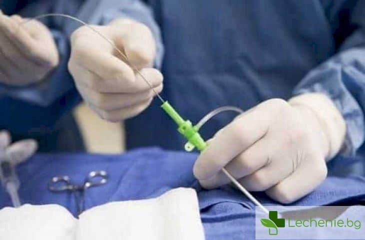 Операции през миниатюрни разрези - чудесата на лапароскопската хирургия