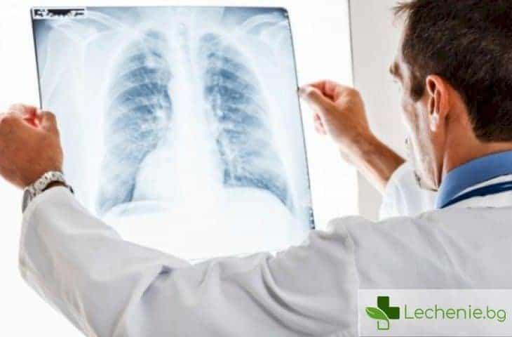 Пневмокониози - опасното въздействие на производствения прах