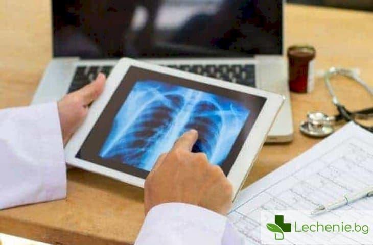 Топ 5 неочаквани причини за лятна пневмония