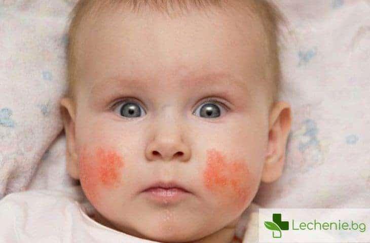 Топ 3 кожни заболявания при децата, които се обострят през пролетта