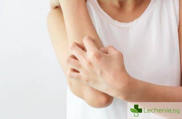Генерализиран пустулозен псориазис - причини и симптоми