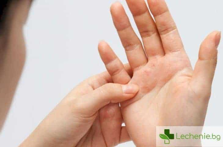 Какви са новостите при лечението на псориазис