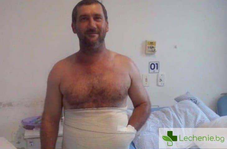 Хирурзи зашиха ръката на бразилец в корема, за да я спасят от ампутация