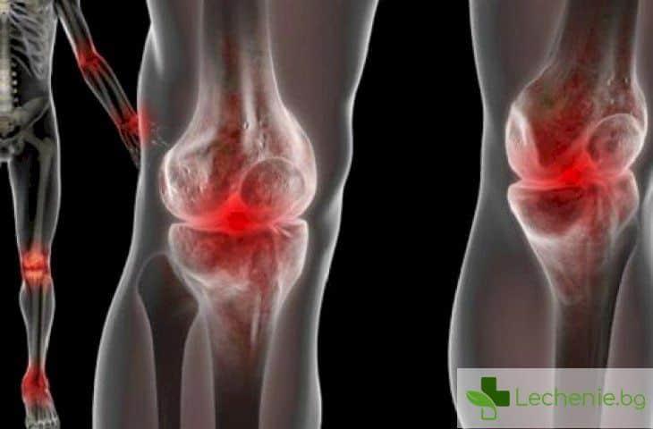 Реактивен артрит при деца - причини, симптоми и лечение