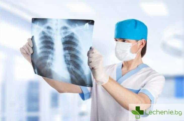 Как рентгенът влияе на репродуктивната система