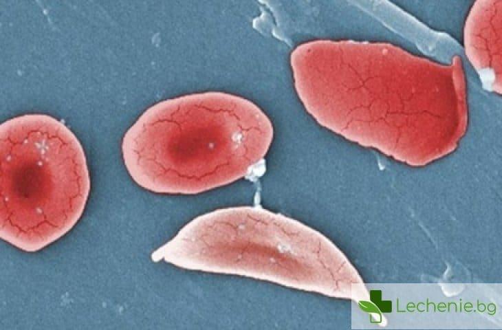 Сърповидно-клетъчна анемия