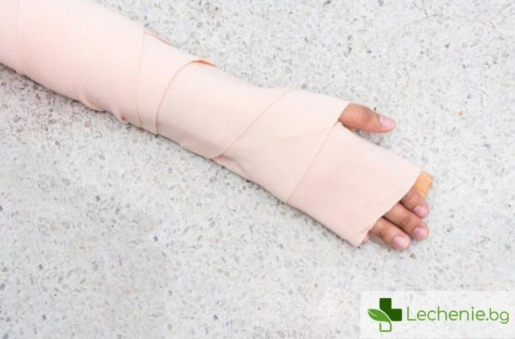 Скрито счупване - признаци, симптоми и лечение