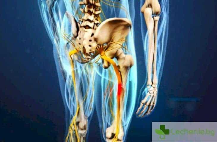 Прищипване на седалищен нерв - топ 4 ефективни народни средства