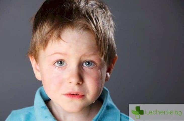 10 признака, че детето ви се намира под стрес