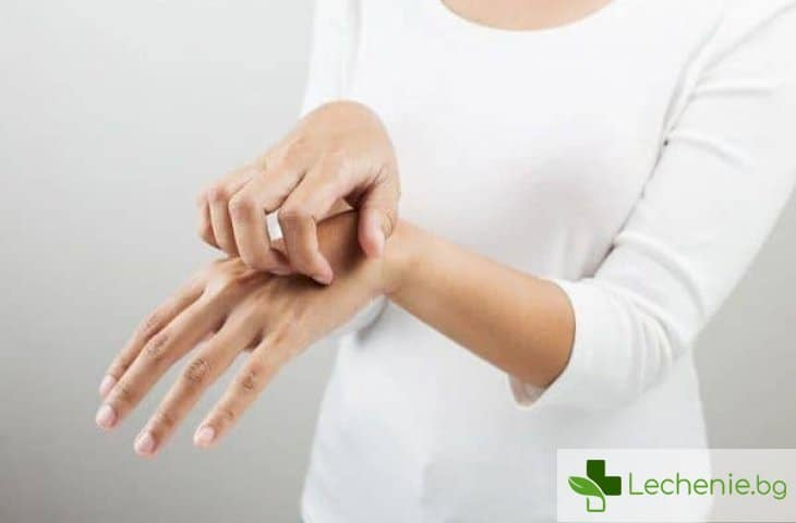 Стронгилоидоза - причини и симптоми за инфекцията