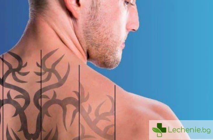 Лазерно премахване на татуировки - какво трябва да знаем, преди да се решим