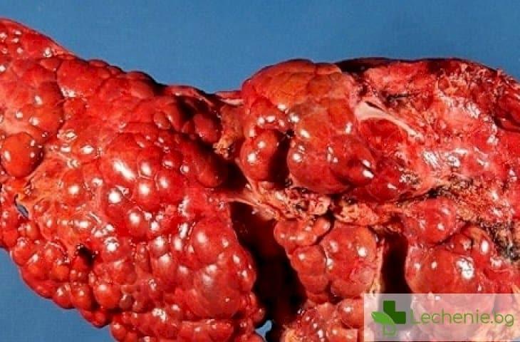 Тирозинемия