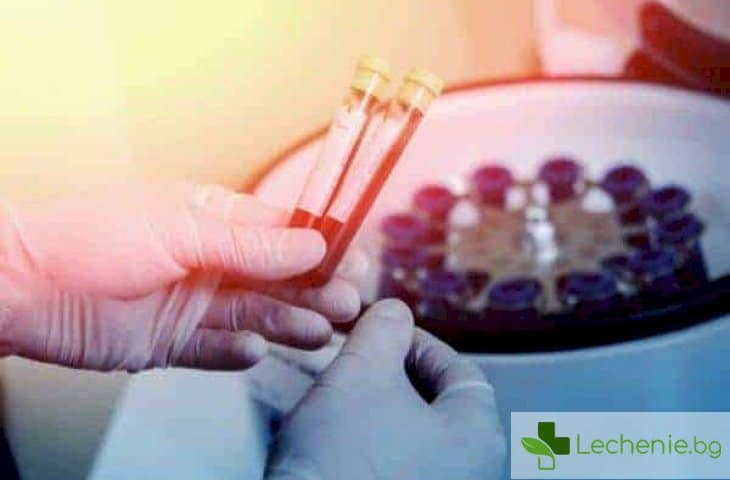 Топ 7 причини за ниски нива на тромбоцити в кръвта