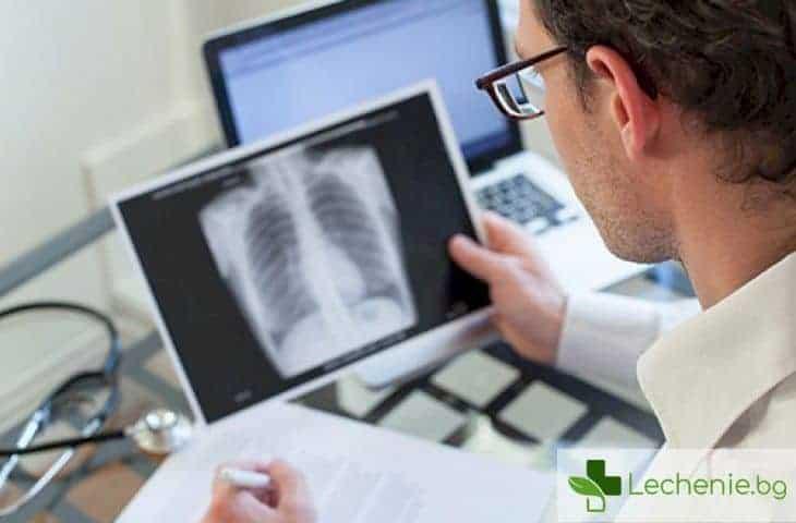 Защо повечето заклети пушачи са с абсолютно здрави бели дробове