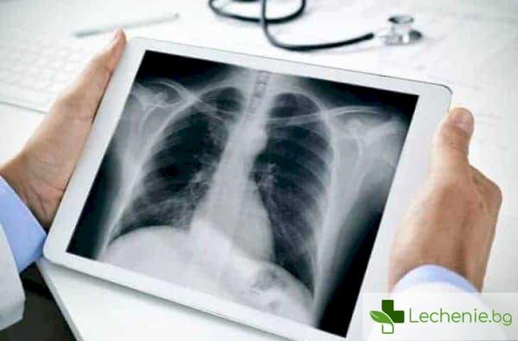 Кавернозна туберкулоза - симптоми и лечение