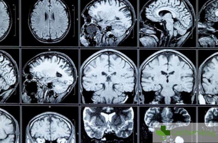 Варицелата предпазва от рак на мозъка