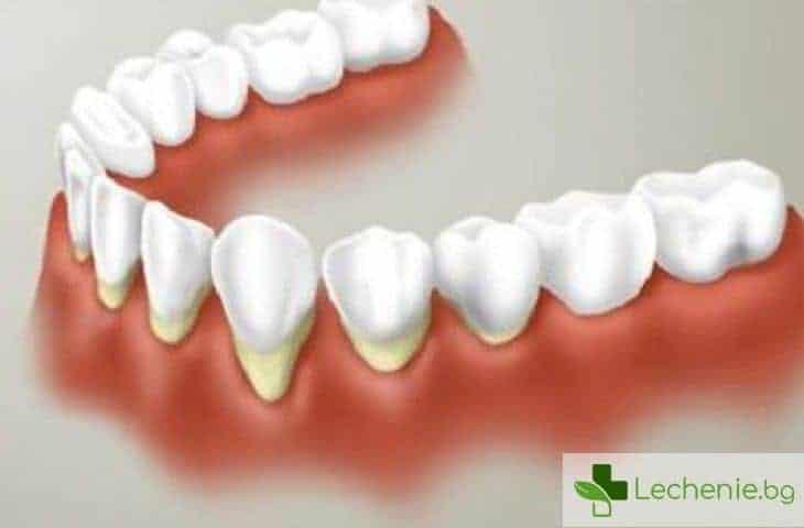 Некроза на венците - причини, симптоми и лечение