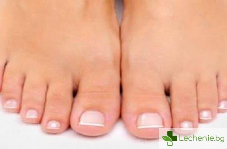 Врастнали нокти на краката