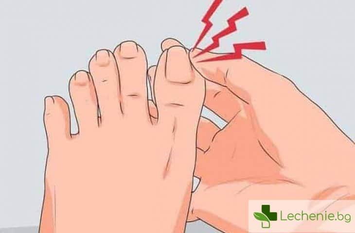 Как да намалите болката от врастващ нокът
