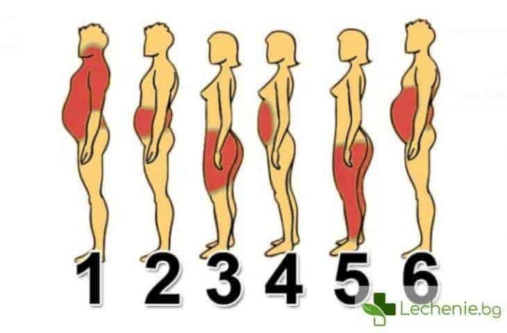 6 типа затлъстяване и как да се справите с всеки от тях