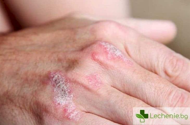 7 съвета за хората с псориазис