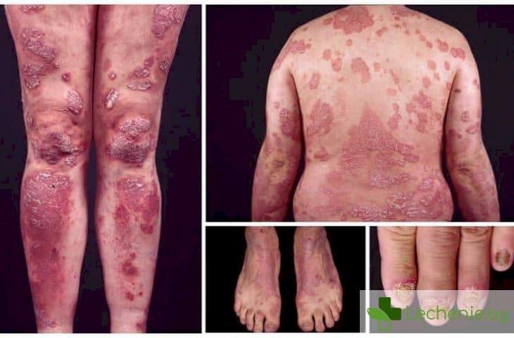 7 опасности, които хората с псориазис трябва да избягват