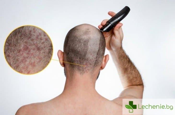 Псориазис на главата - с какво може да се излекува