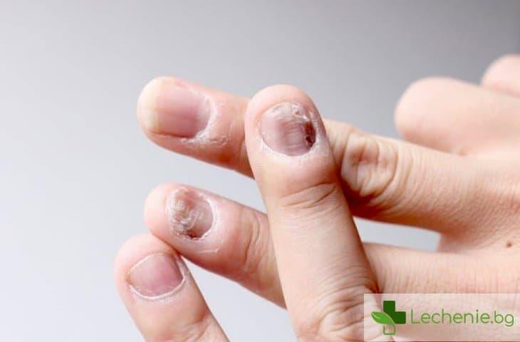 Псориазис на ноктите - сигурен предвестник на артрит