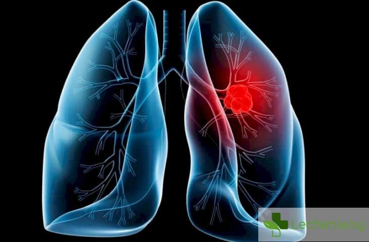 Кои са симптомите за рак на белия дроб