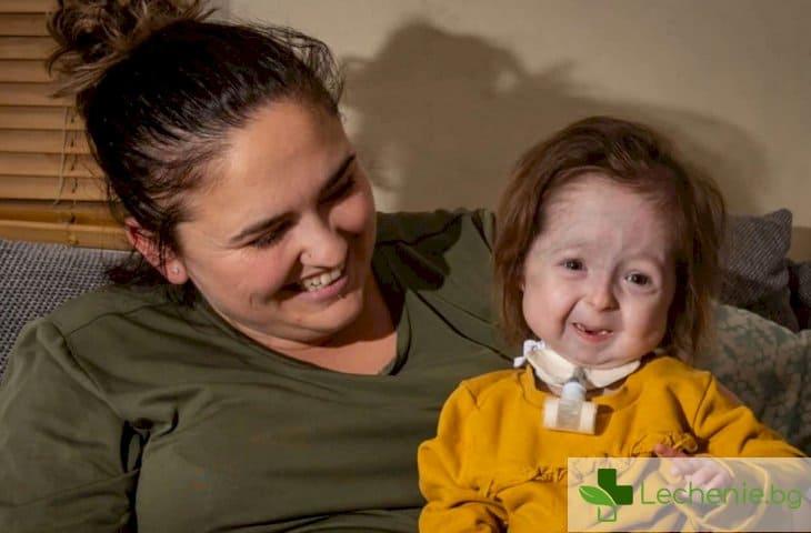 Рядка болест превърна малко момиченце в старица