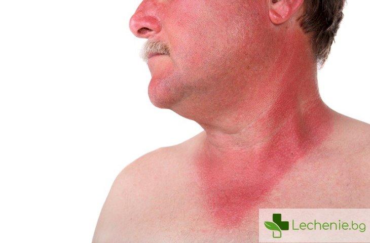 Как да успокоим кожата си след слънчево изгаряне?