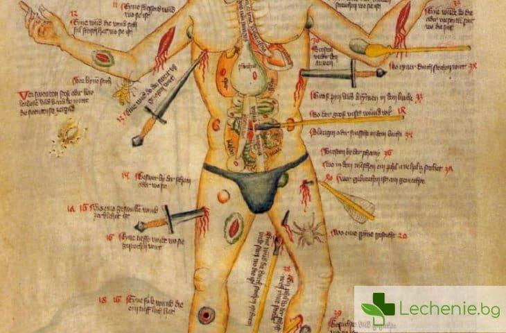 6 болезнени практики на средновековната медицина