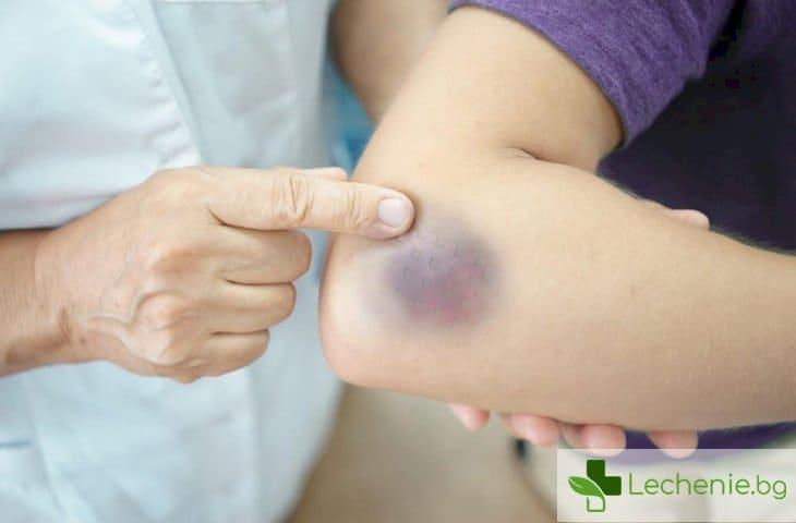 Характерни симптоми на левкемия - топ 7