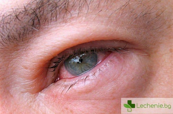Kръвоизливи в очите - опасни ли са за здравето